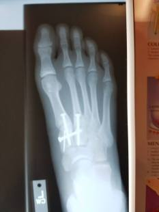 post-op-x-ray