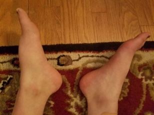 swelling-picture